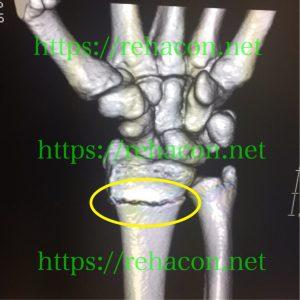 橈骨遠位端骨折CT画像