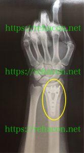 橈骨遠位端骨折術後レントゲン
