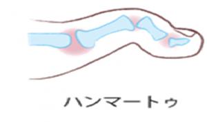 ハンマートゥ2