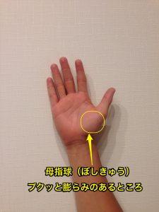 消え 痛み た これ が 症候群 で シビレ 手 管 根 手根管症候群の症状・原因・治療方法 [骨・筋肉・関節の病気]