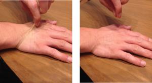 手の甲の皮膚をつまみあげる→離す