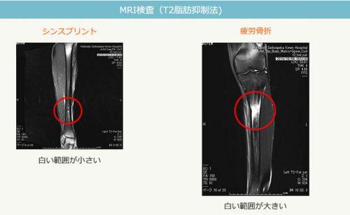 引用:北海道整形外科記念病院