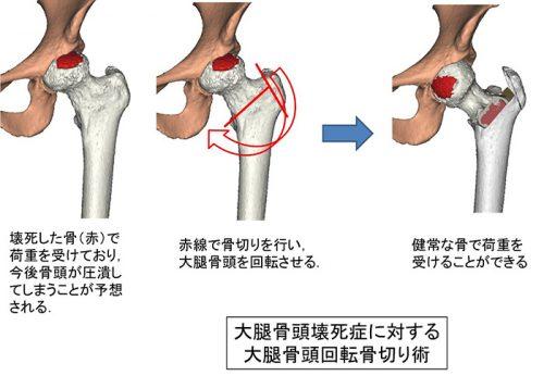 引用:京都府立医科大学