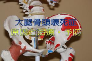 大腿骨頭壊死症