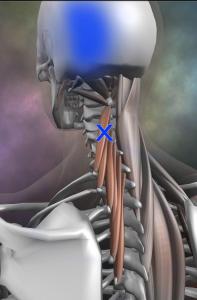 頸半棘筋 トリガーポイント