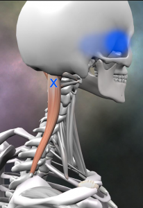 頭半棘筋 トリガーポイント