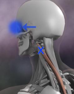 頸板状筋 トリガーポイント