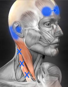 胸鎖乳突筋 トリガーポイント