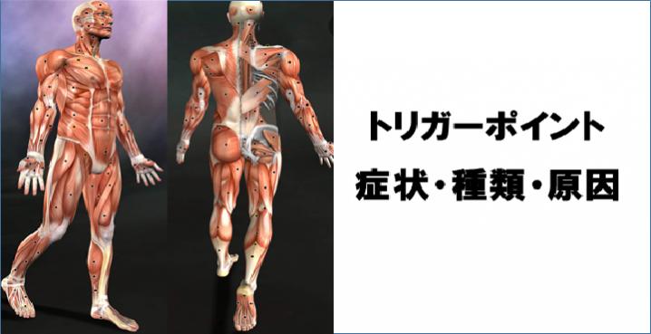 トリガーポイントの症状・種類・原因