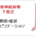 腓骨神経麻痺・下垂足