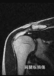 肩腱板MRI