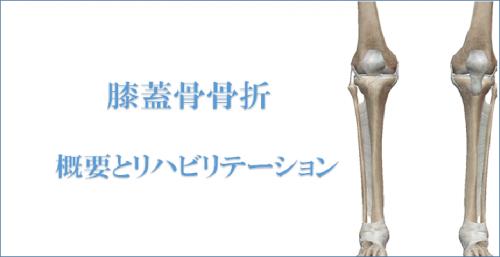 膝のお皿の骨折『膝蓋骨骨折』の...
