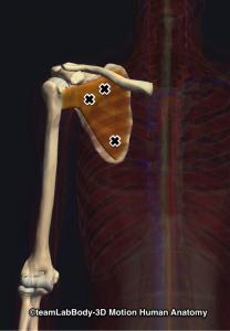 肩甲下筋トリガーポイント