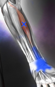 橈骨手根屈筋トリガーポイント