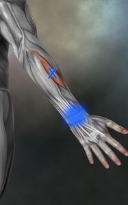短橈側手根伸筋トリガーポイント
