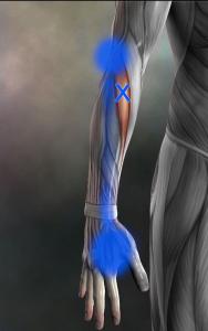 長橈側手根伸筋トリガーポイント