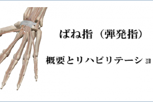 ばね指の概要とリハビリ治療