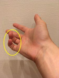 小指・薬指の変形