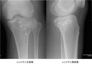 脛骨高原骨折
