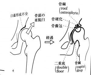 骨硬化・骨棘・骨嚢包