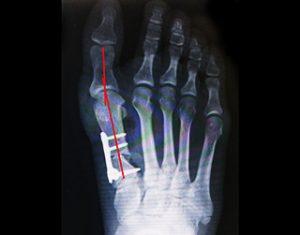 外反母趾の手術