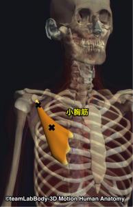 小胸筋トリガーポイント