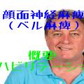 顔面神経麻痺(ベル麻痺)