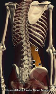 腰方形筋トリガーポイント