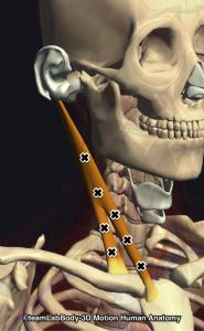 胸鎖乳突筋トリガーポイント