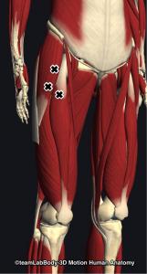 大腿筋膜張筋・大腿直筋トリガーポイント