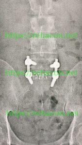 腰椎椎間板ヘルニア術後レントゲン画像